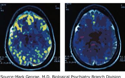 Riflessioni notturne sul contributo delle neuroscienze.